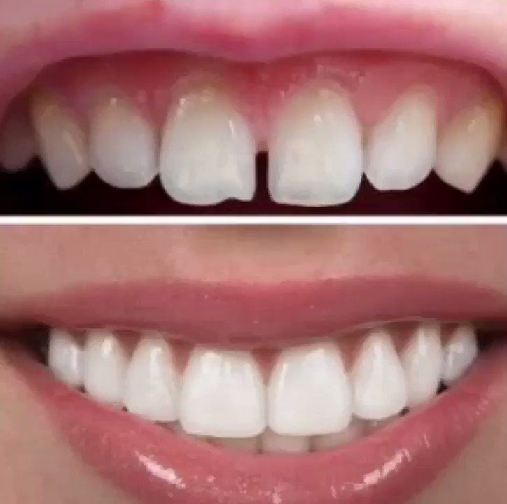 These veneers I just got are so AMAZING!...