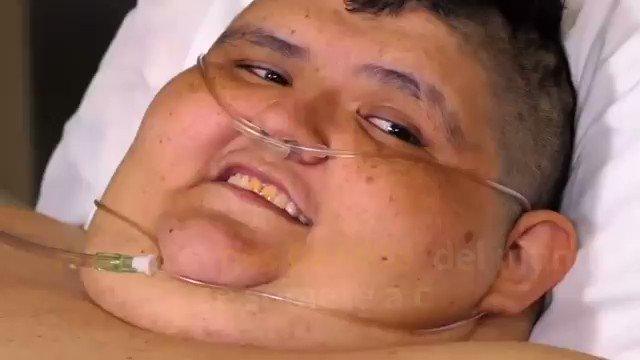 'Hombre más pesado' del mundo se somete a cirugía #JuanPedroFranco #obesidad https://t.co/53JVCsVabl