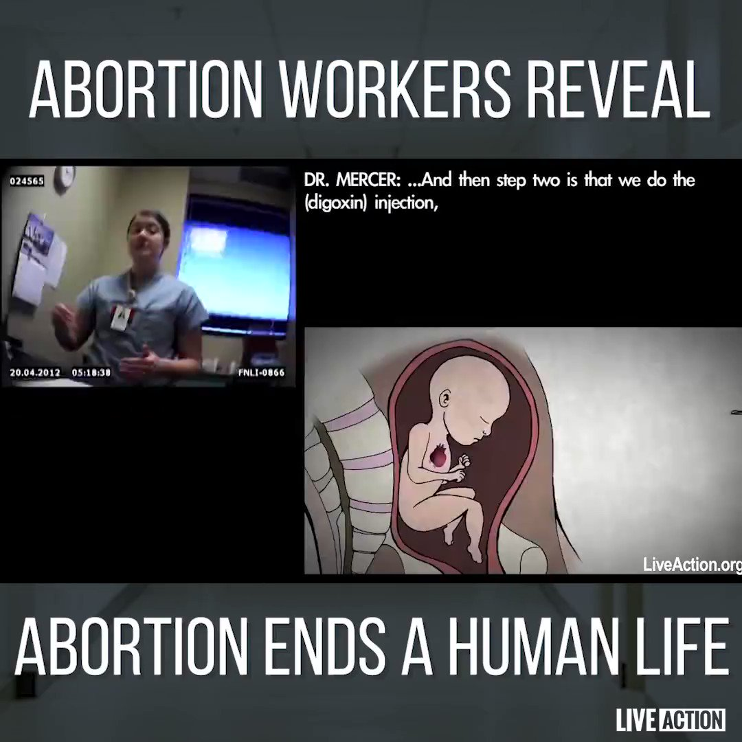 """Inside abortion clinics, fully developed & often viable babies are killed through all 9 months of pregnancy. Cameras caught abortionists admitting that they remove babies """"in pieces,"""" even joking about procedures they commit   #FIFAWWC #U20WWC #U17WWC #FIFA"""