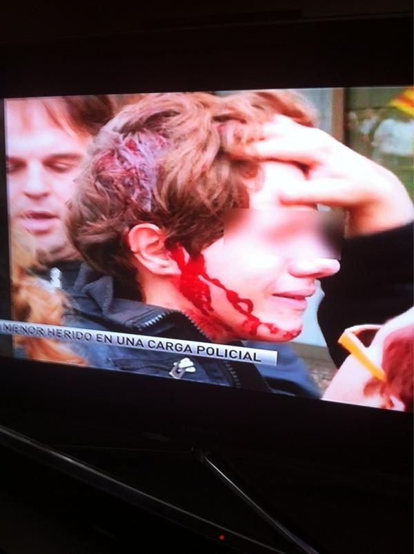 Child injured in a police charge in the city of Tarragona #Spain http://pic.twitter.com/BlqJpDMd via @SocialcumbreS @albertjohn #rbnews #14n #14-n