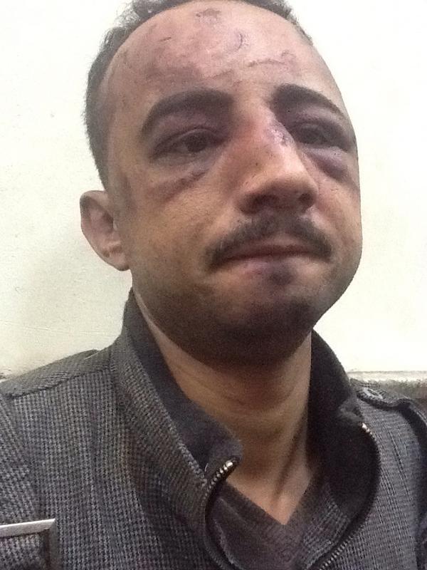 صورة لاثار تعذيب سيد فتحي توفيق ٣٣ سنة احد المختطفين من ملشيات الاخوان ولسه واصل تحقيقات النيابة http://pic.twitter.com/oMTQc1lt