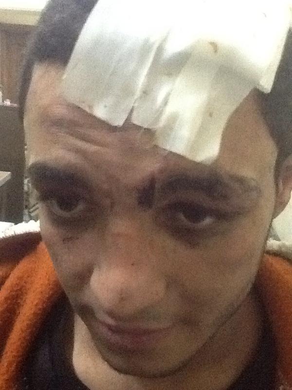 محمد عبد الباسط متولي ٢٤ سنة آثار تعذيب ملشيات الاخوان http://pic.twitter.com/Bpdad2RU