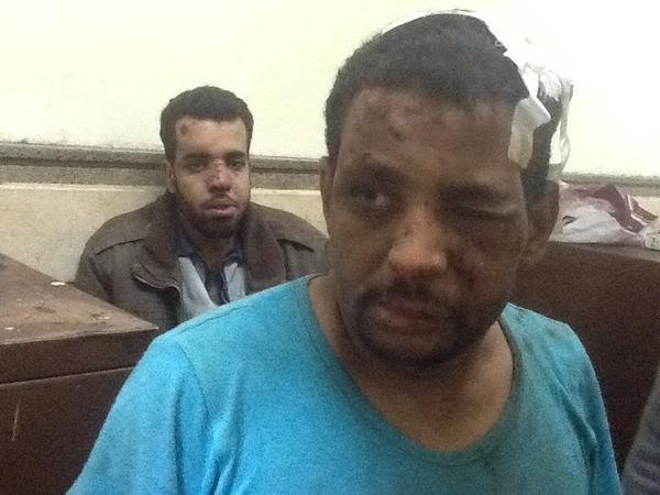 محمد أبو الوفا علي احمد ٣٨ سنة يعمل حداد آثار تعذيب ملشيات الاخوان http://pic.twitter.com/TDPl9y84