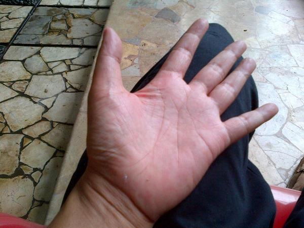 Ki Joko Bodo On Twitter Bila Telapak Tangan Kiri Gatal Per Tanda