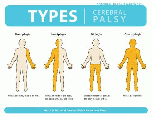 Us Soccer Pnt On Twitter 1 March Is The Start Of Cerebral Palsy