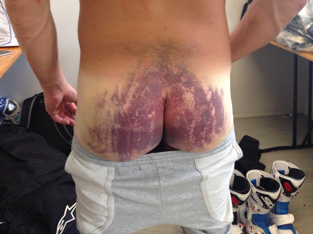 Think you've had a bruised butt? This plus broken ribs, still p7 race 2. Tough lad... @RandydePuniet14 http://t.co/UhTKgb6mQy
