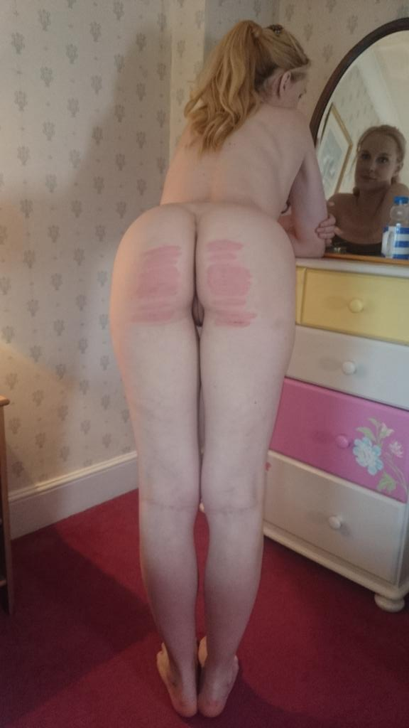 Ariel Anderssen showing off her marks from a 25 stroke cold caning