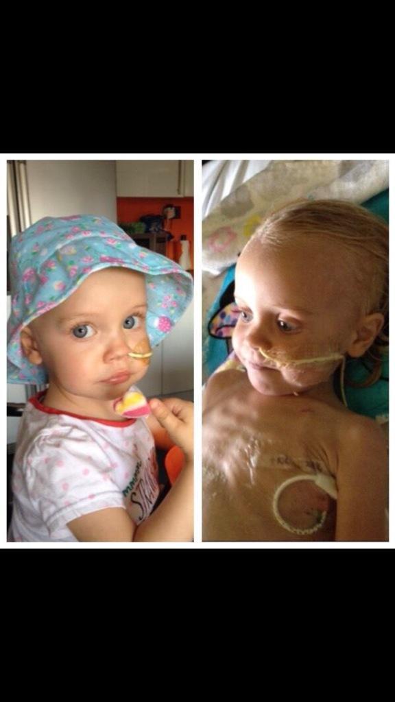 RT @anita128: @lemontwittor pls RT for Kent 2yr old #rubylaura who has rare cancer. Needs £500k. https://t.co/ardFYGQLFn thanks xx http://t…