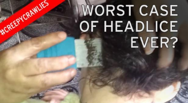 Liverpool Echo Verified account Head Lice Eggs On Blonde Hair