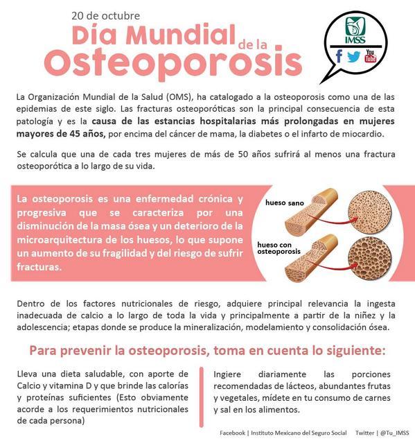 Osteoporosis todas las noticias de ltima hora fotos y v deos en tiempo real - Alimentos para la osteoporosis ...