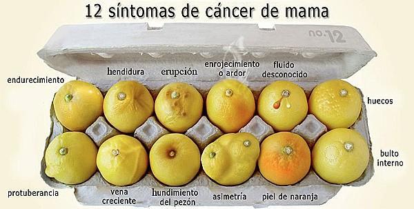 12 Síntomas de cáncer de mama. http://t.co/yaCqvye1DS