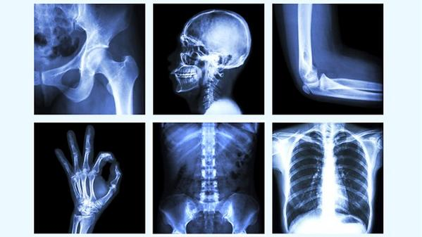 Your bones are alive. And need your attention. World #Osteoporosis Day http://t.co/15z6gqWCOd via @EverydayHealth http://t.co/GjOl6ZEF4T