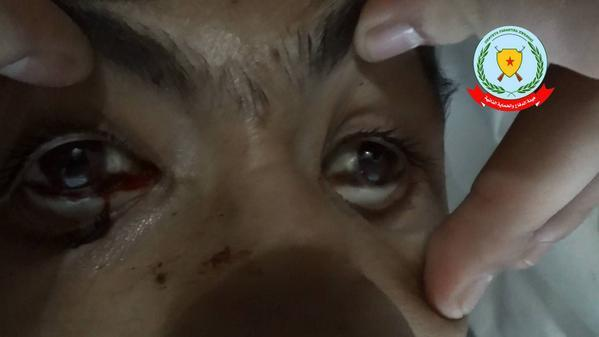 ISIS now using chemical weapons on the Kurds in Kobani