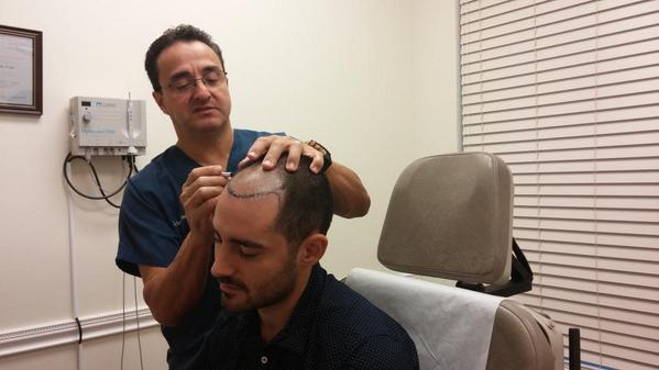 We will be posting live updates on a #hairtransplant today on 26 yr old patient. Dr.Mejia is drawing hairline. http://t.co/aHwZyJOT6I