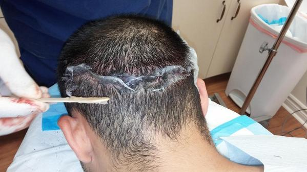 Dr. Mejia just finished the trichophytic closure on the donor hair and added antibiotic ointment. #Hairtransplant http://t.co/MVK2YjXkP1