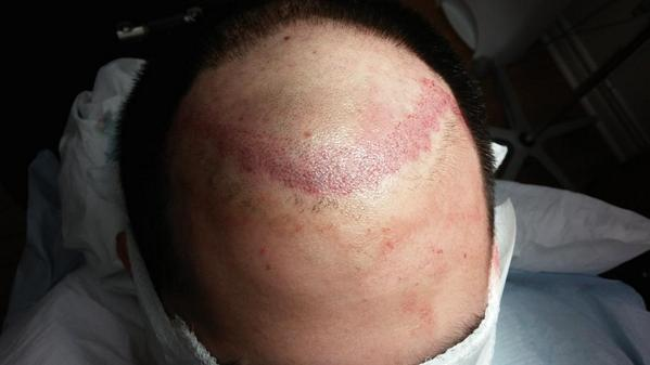1000 recipient sites made so far ready for hair follicles #hairtransplant Patient is not experiencing any pain. http://t.co/C9qfxWbYwZ