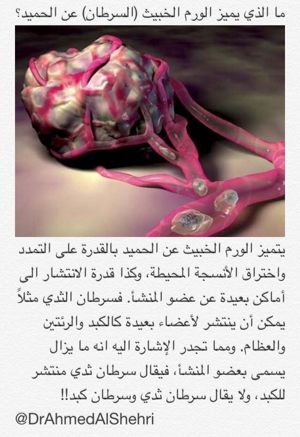 سعد التويم Twitterren الفرق بين الورم الخبيث والحميد معلومة مهمة Http T Co R8av1mdft2