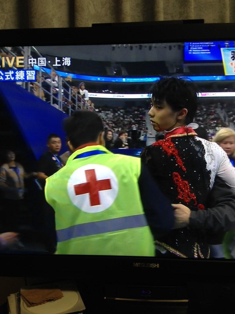 〜速報〜  羽生結弦 中国のえんかん選手と公式練習にて接触。 羽生結弦のあごとえんかん選手の肩が接触した模様。  あご、額に血が流れていて 続行できるかは不明。