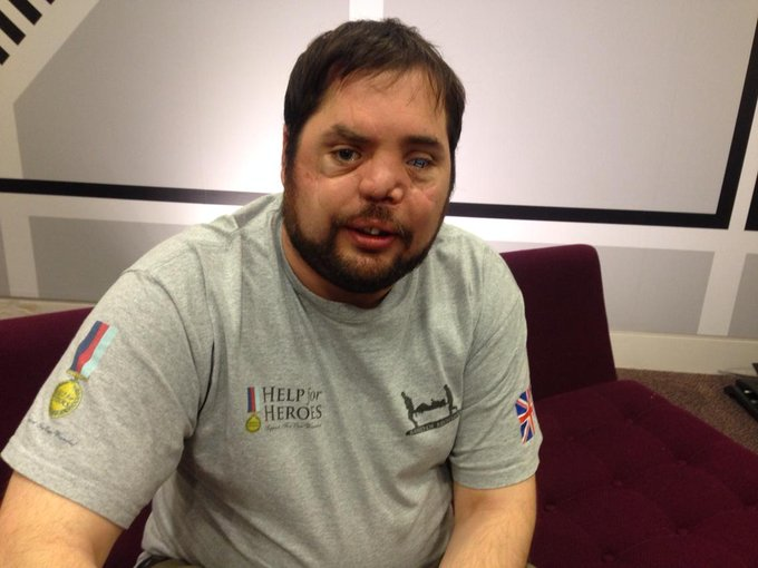 Former soldier Simon Brown says he hasn't had treatment he needs on nhs after being shot in face in 2006 @bbcr4today http://t.co/isPJ5mBHHL