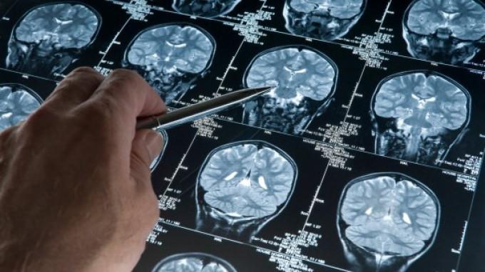 Prevenzione Ictus Cerebrale, a Bologna screening gratuiti ai cittadini in piazza il 24 maggio