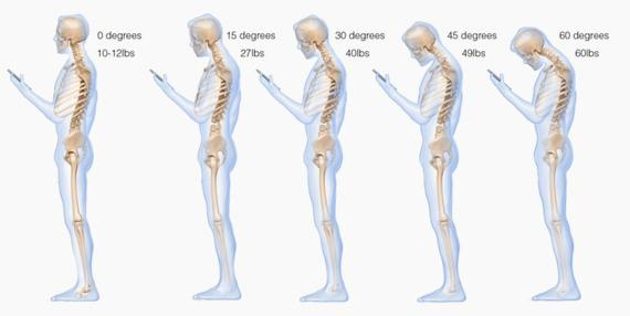 Shocking to see what texting does to the spine - http://t.co/rYqwfwgV0O http://t.co/ujtEh3RPUQ