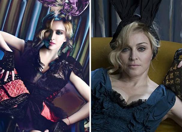 Madonna e seus retoques aos 56 anos de idade. Fugir da realidade