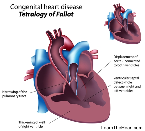 Learntheheart Com On Twitter Quot Tetralogy Of Fallot Quot Prove