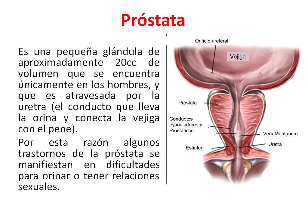 tener una próstata pequeña