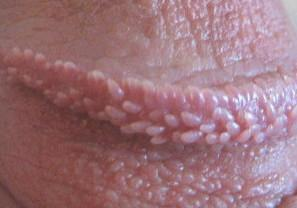 Penile papules pearly Pearly penile