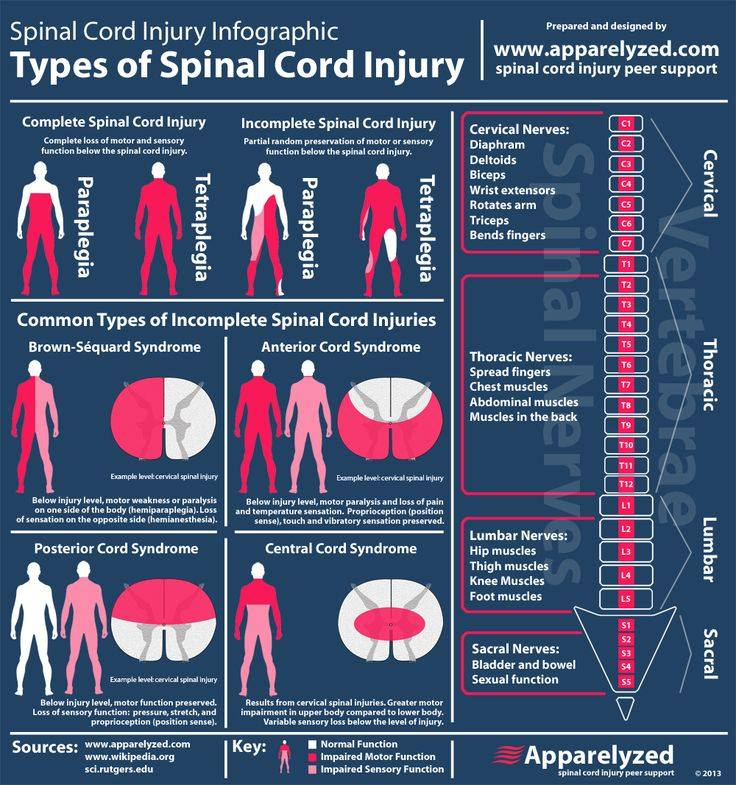 Understanding spinal injuries http://t.co/AOrPDx5uCD