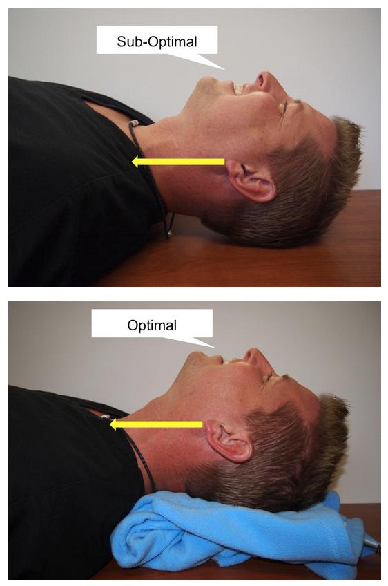 Bildresultat för ear to sternal notch