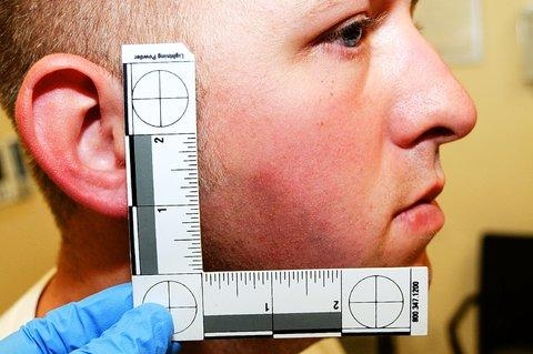 The clearest image of Officer Darren Wilson's most severe injury: A minor abrasion on his face http://t.co/yyFCtZddh1 http://t.co/kt3S1NGxC5