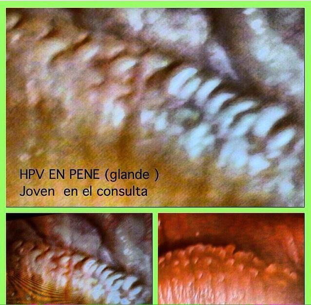 imagenes de penescopia