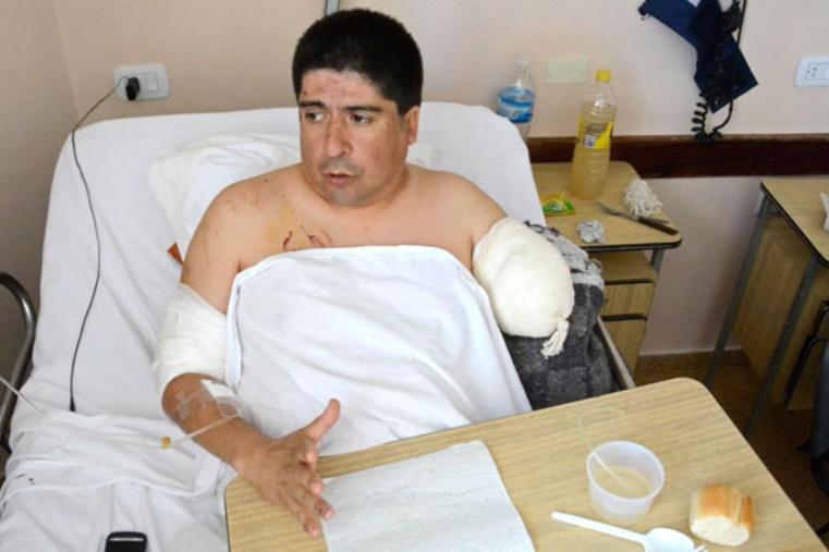 Neuquén | Su propio rottweiller lo atacó y perdió un brazo