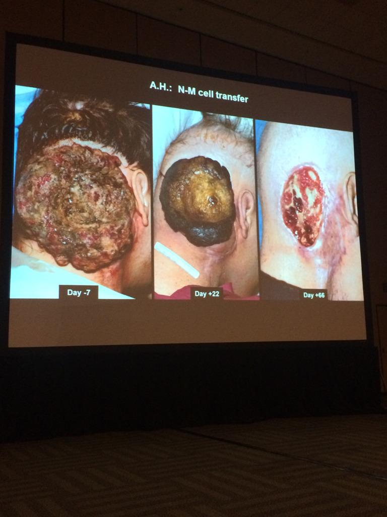 Slide of #ASH14 Steve Rosenberg on adoptive T cell therapy impact on head melanoma - stunning effect: http://t.co/tGrqxyHIfJ