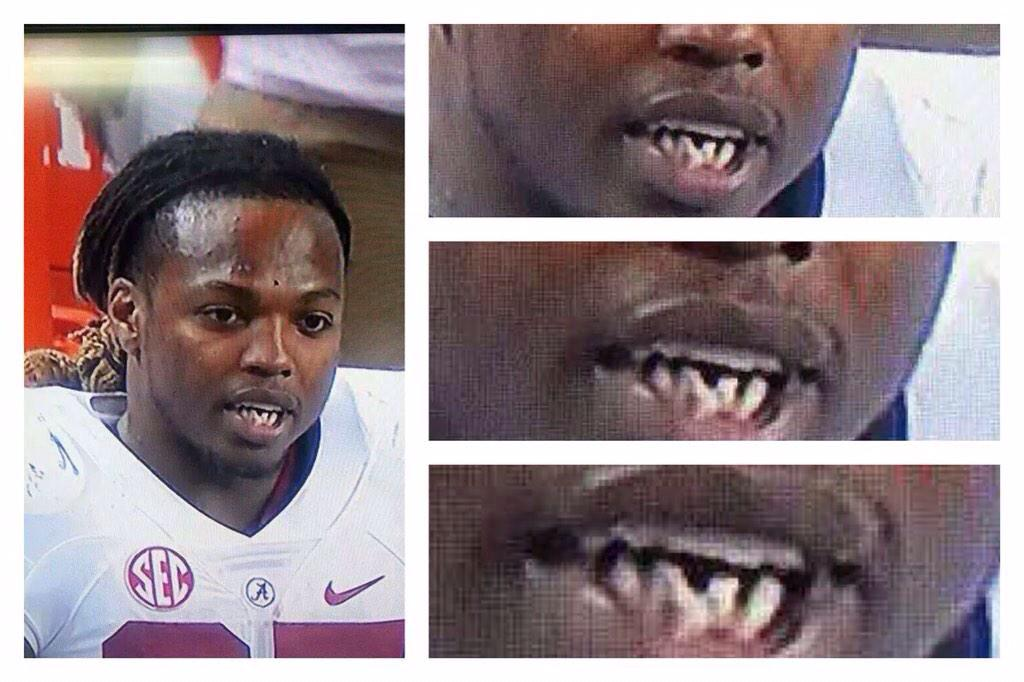 J Cole Teeth First thing Alabama RB...