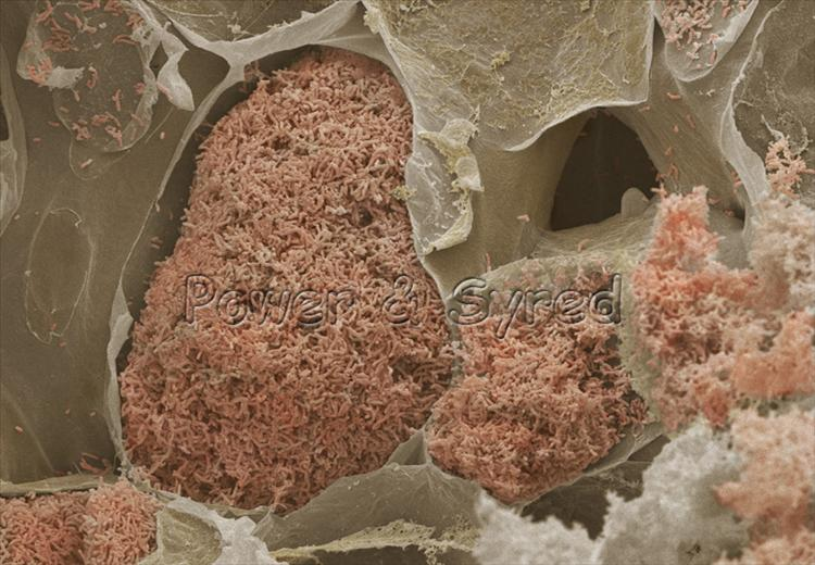 Foto microscopía electrónica coloreada de nódulo en raíz de una planta con bacterias Rhizobium en interior #microMOOC http://t.co/iskZhs2NeP