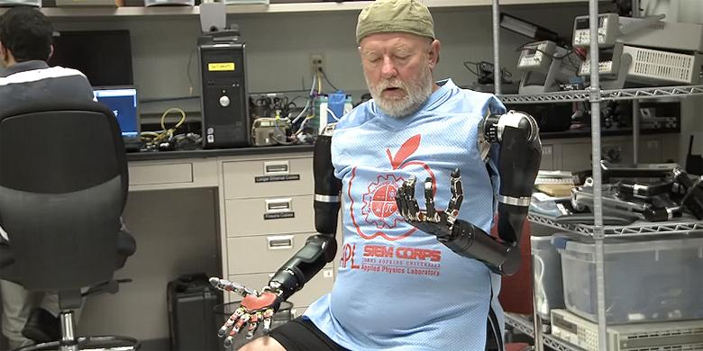 Skynet Gets One Step Closer: Amputee Makes History With Two Mind-Controlled Cyborg Arms http://t.co/U6MDrlKfDq http://t.co/heXrpr15qJ