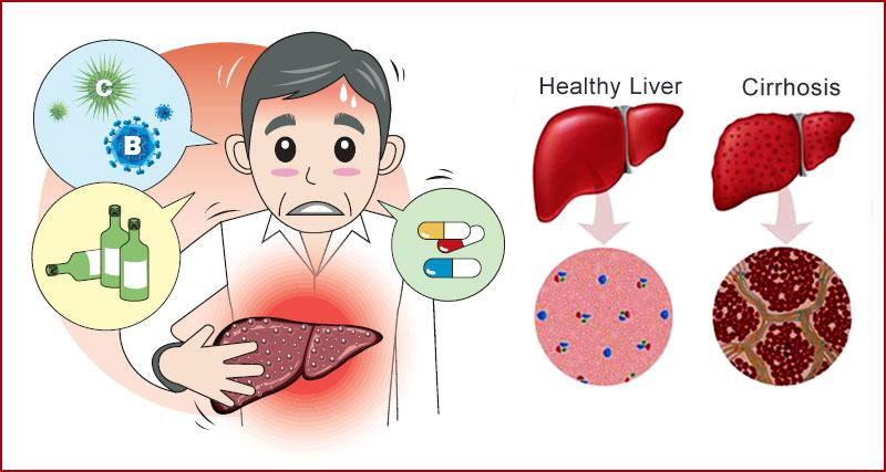 liver cirrhosis symptoms