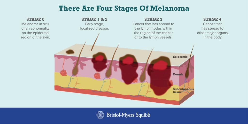stage 3 melanoma skin cancer diagram