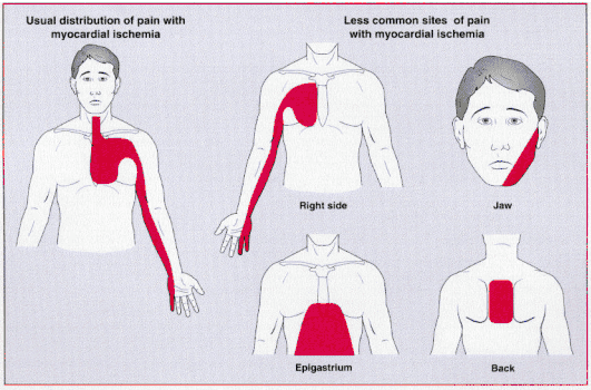 Learntheheart On Twitter \angina Typical Substernal And Left Rhtwitter: Heart Pain Locations At Elf-jo.com