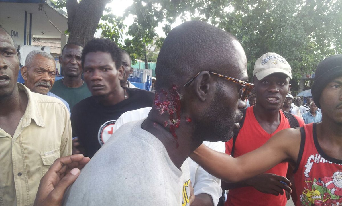 This is why women don't go to anti govt demonstrations in #Haiti.. check out the guy's neck #Jan1 #2015 http://t.co/71HyVe6SmI