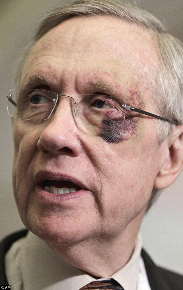 Harry Reid in hospital with broken ribs, facial bones