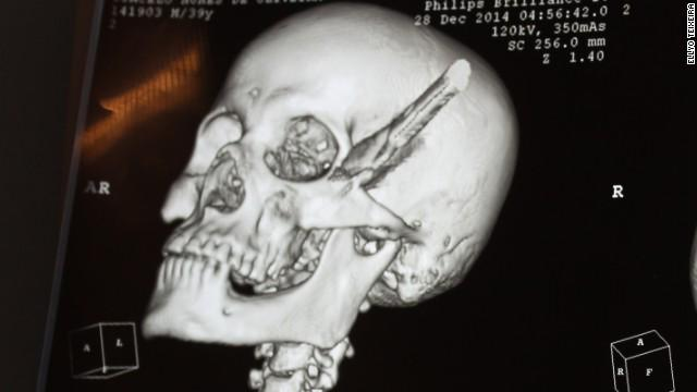 Man With Knife In Skull For Hours 'Wasn't Aware Of It'