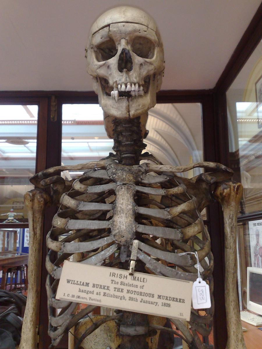Swoop On Twitter William Burkes Skeleton Is Displayed In The