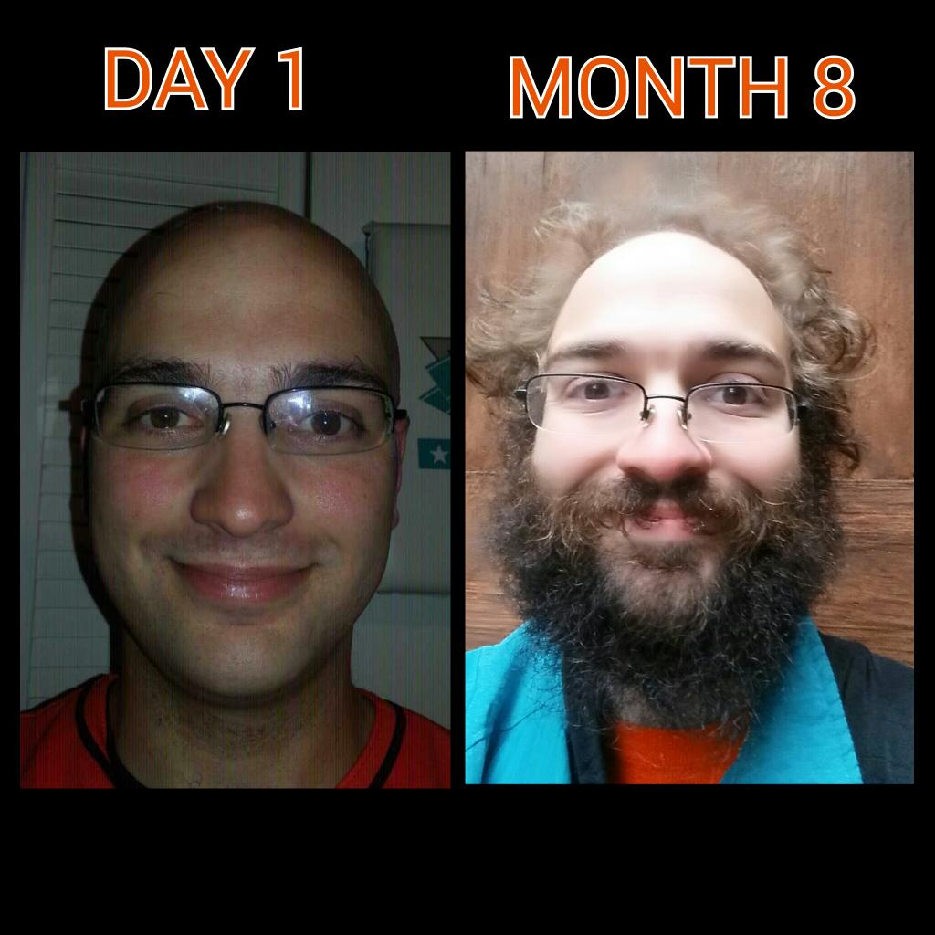 Marlinfamily Here Is The 8 Month Update Photo And Video No Shave