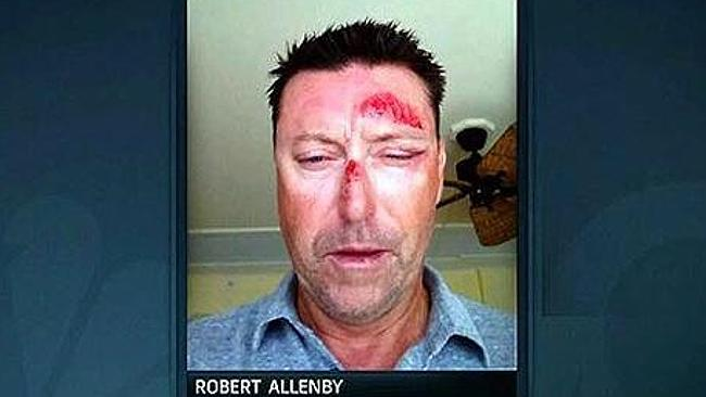 Aussie golfer #RobertAllenby on his horror kidnap in Hawaii was 'just like the Taken movies' http://t.co/hSa5gDHOe7 http://t.co/3TvwHdAfZ9