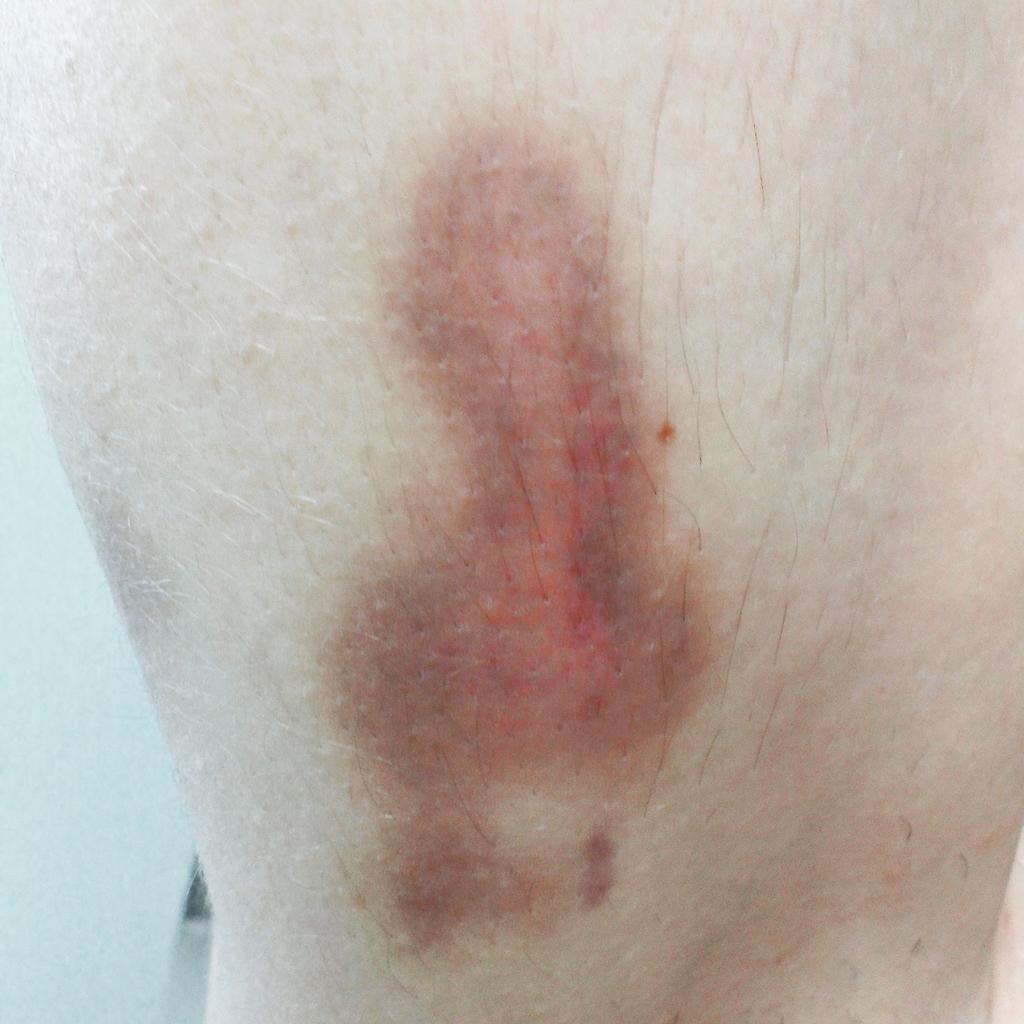 Bruise On Penis