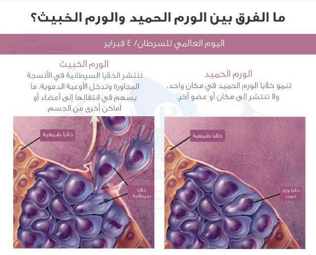 وحدة الرعاية الصحية On Twitter الفرق بين الورم الحميد والخبيث Http T Co Rzeuqd78ut