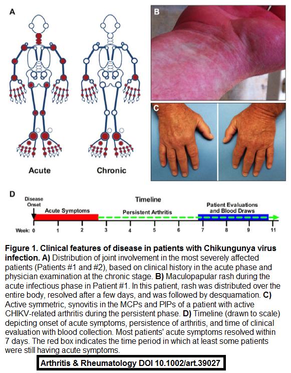 Chikungunya is an arthritogenic mosquito-transmitted virus mimicking seroneg. #RA #rheumedu http://t.co/hMbV0EtGsg http://t.co/r1J9b5MuKK